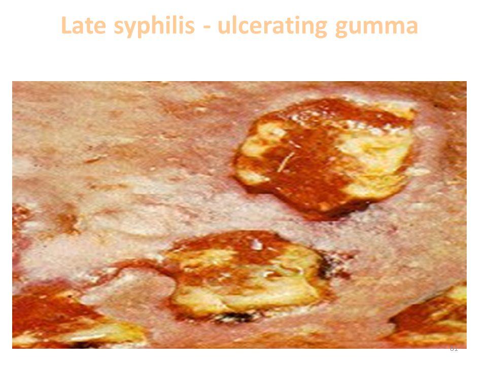 Late syphilis - ulcerating gumma 81