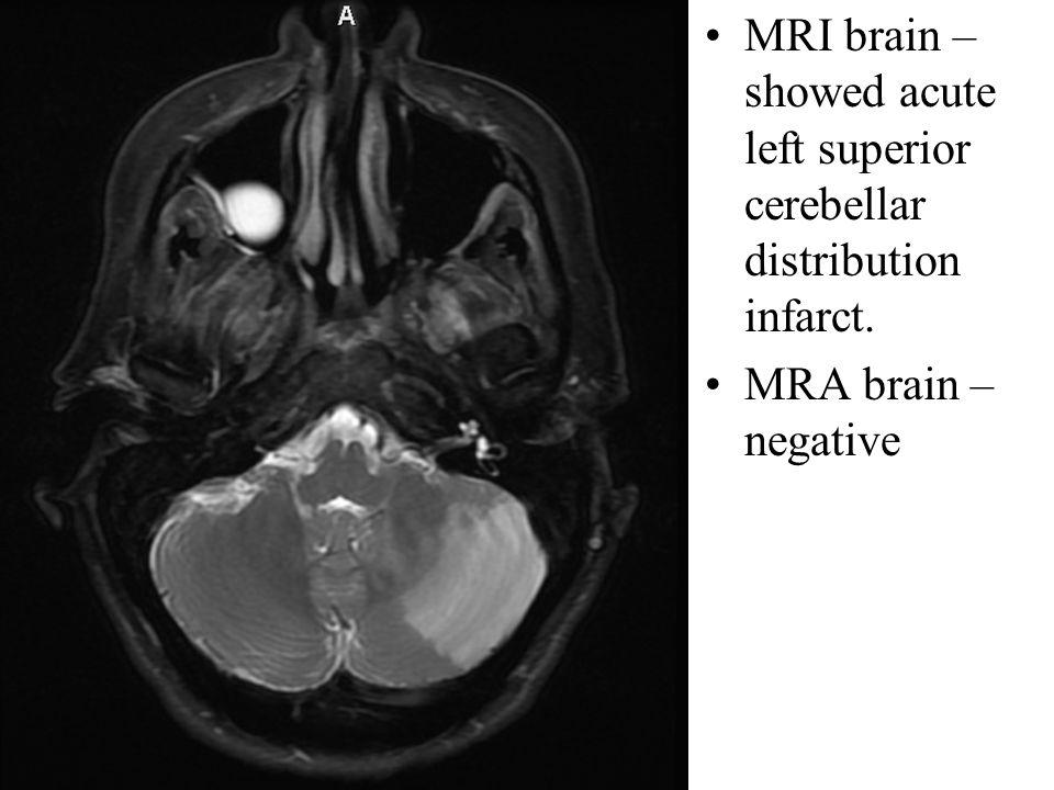 Central MRI brain – showed acute left superior cerebellar distribution infarct.