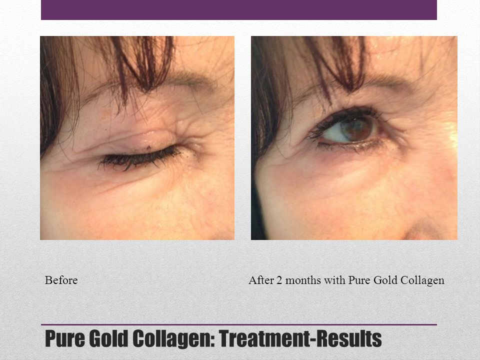 Pure Gold Collagen: Treatment-Results Before After 2 months with Pure Gold Collagen