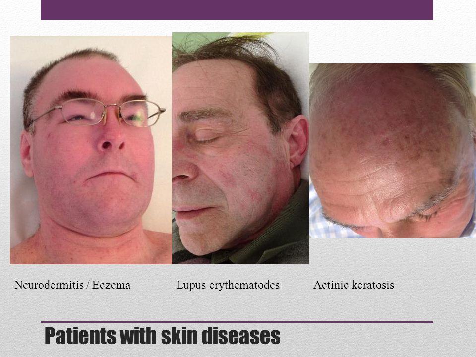 Patients with skin diseases Neurodermitis / EczemaLupus erythematodesActinic keratosis