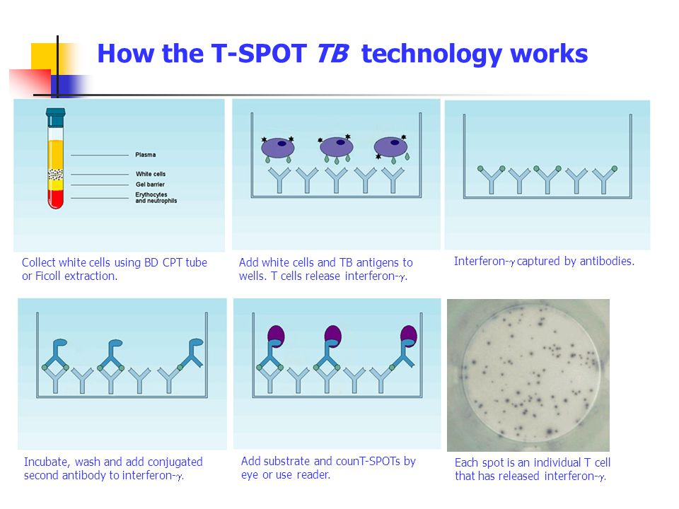 How the T-SPOT TB technology works Collect white cells using BD CPT tube or Ficoll extraction. Add white cells and TB antigens to wells. T cells relea