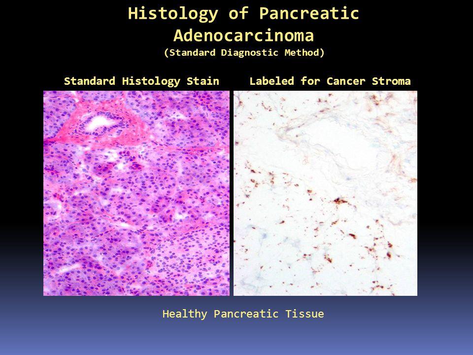 Histology of Pancreatic Adenocarcinoma Pancreatic Cancer Tissue Standard Histology StainCancer Stroma Labeled