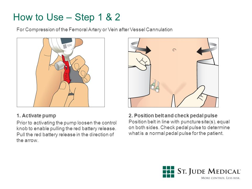 How to Use – Step 1 & 2 1. Activate pump Prior to activating the pump loosen the control knob to enable pulling the red battery release. Pull the red
