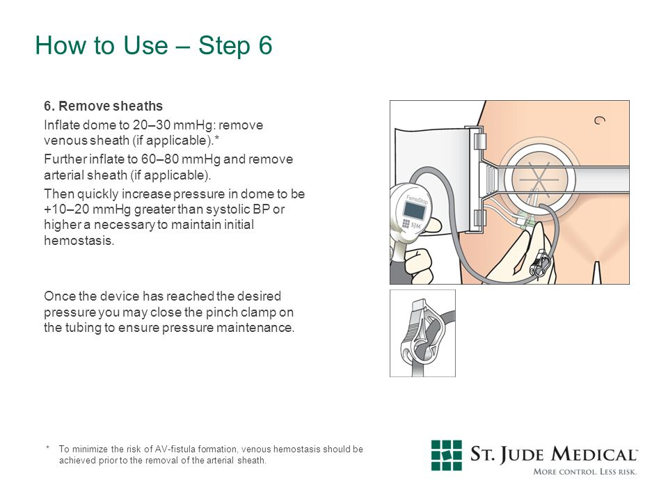 How to Use – Step 6 6. Remove sheaths Inflate dome to 20–30 mmHg: remove venous sheath (if applicable).* Further inflate to 60–80 mmHg and remove arte