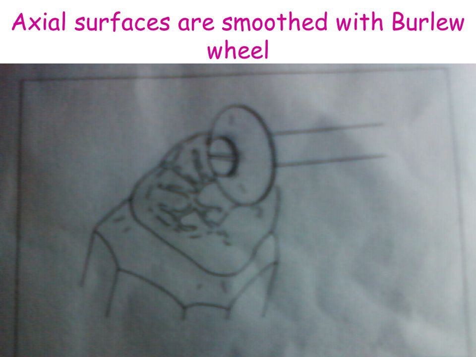 Axial surfaces are smoothed with Burlew wheel