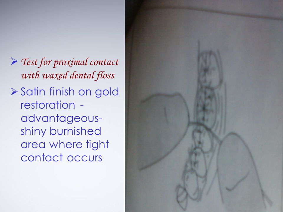 Test for proximal contact with waxed dental floss Satin finish on gold restoration - advantageous- shiny burnished area where tight contact occurs
