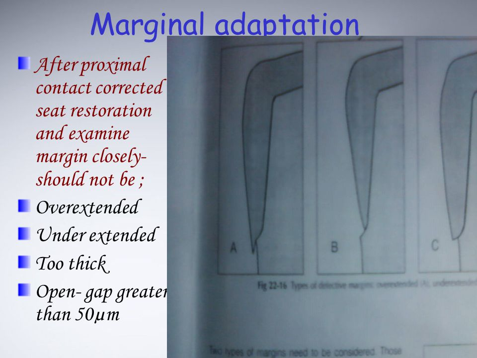 Marginal adaptation After proximal contact corrected seat restoration and examine margin closely- should not be ; Overextended Under extended Too thic