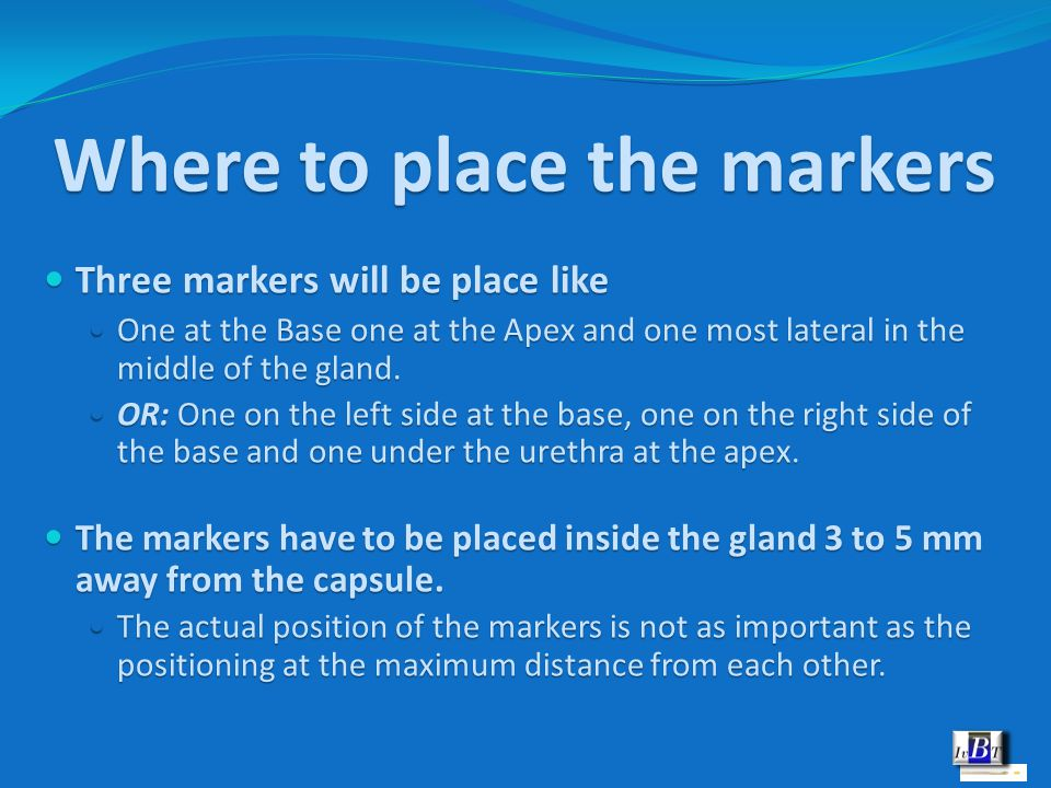 Where to place the markers Three markers will be place like Three markers will be place like One at the Base one at the Apex and one most lateral in t