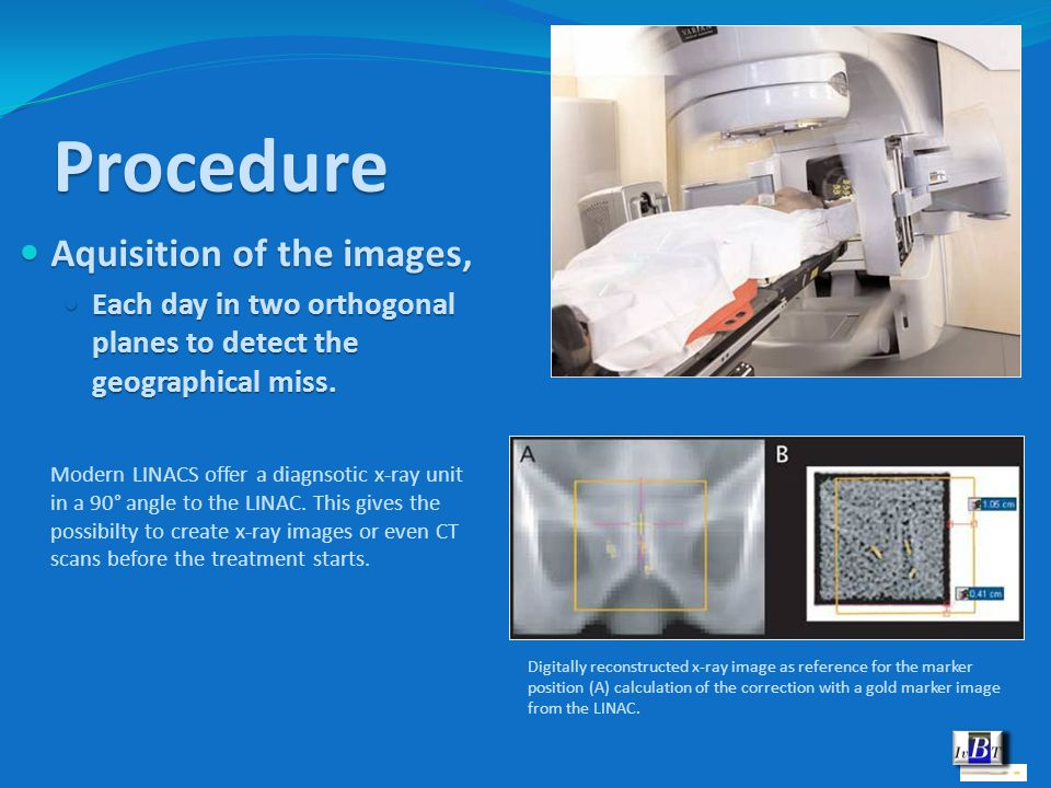 Procedure Aquisition of the images, Aquisition of the images, Each day in two orthogonal planes to detect the geographical miss. Each day in two ortho