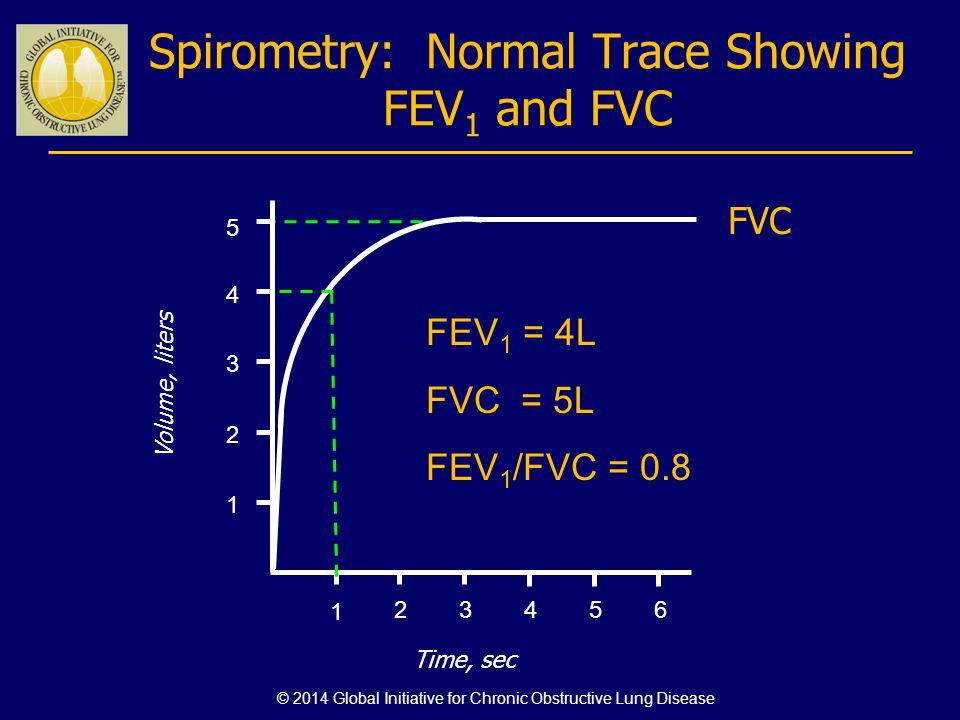 Spirometry: Normal Trace Showing FEV 1 and FVC 123456 1 2 3 4 Volume, liters Time, sec FVC 5 1 FEV 1 = 4L FVC = 5L FEV 1 /FVC = 0.8 © 2014 Global Init