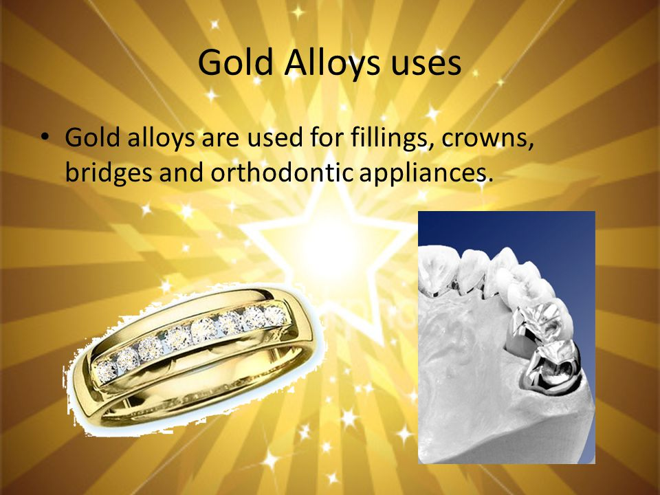 Gold Alloys uses Gold alloys are used for fillings, crowns, bridges and orthodontic appliances.