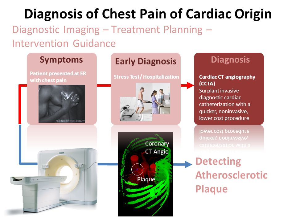 Diagnosis of Chest Pain of Cardiac Origin Diagnostic Imaging – Treatment Planning – Intervention Guidance Plaque Coronary CT Angio Detecting Atheroscl