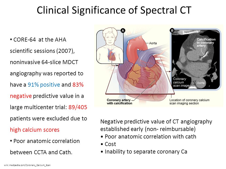 Clinical Significance of Spectral CT wiki.medpedia.com/Coronary_Calcium_Scan Negative predictive value of CT angiography established early (non- reimb