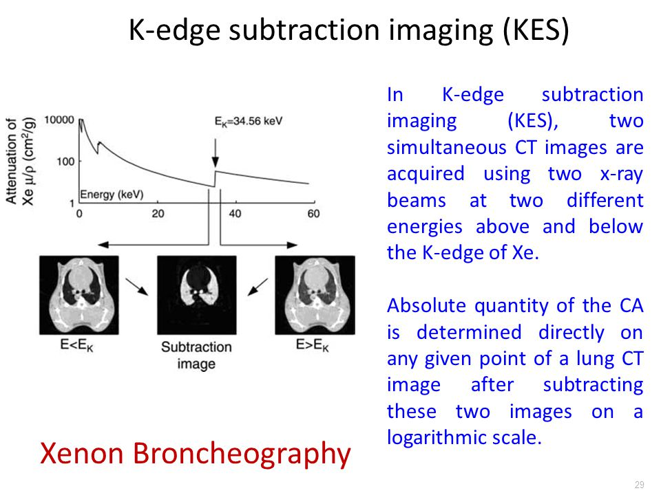 29 In K-edge subtraction imaging (KES), two simultaneous CT images are acquired using two x-ray beams at two different energies above and below the K-
