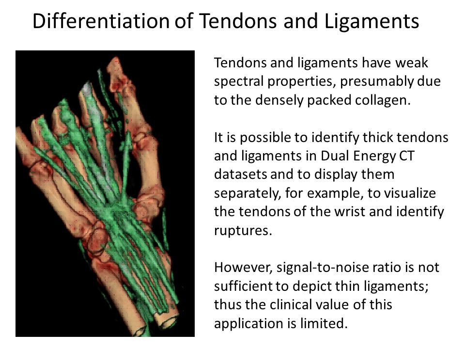 Differentiation of Tendons and Ligaments Tendons and ligaments have weak spectral properties, presumably due to the densely packed collagen. It is pos