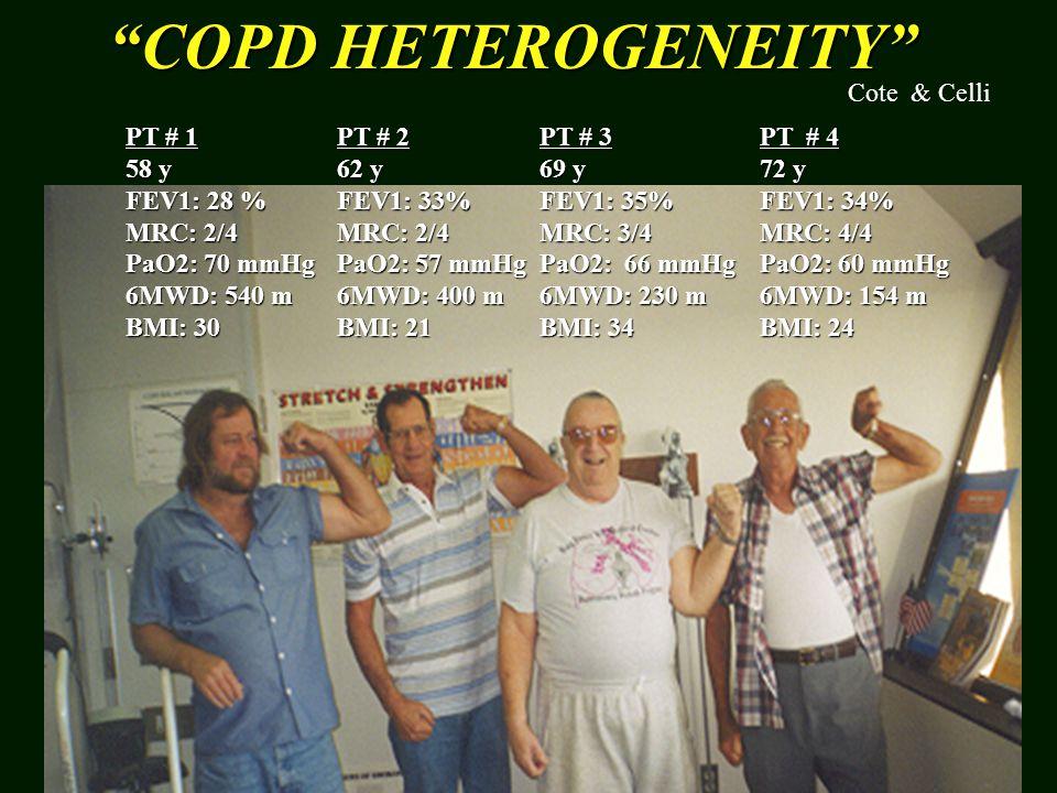 COPD HETEROGENEITY PT # 1 58 y FEV1: 28 % MRC: 2/4 PaO2: 70 mmHg 6MWD: 540 m BMI: 30 PT # 2 62 y FEV1: 33% MRC: 2/4 PaO2: 57 mmHg 6MWD: 400 m BMI: 21