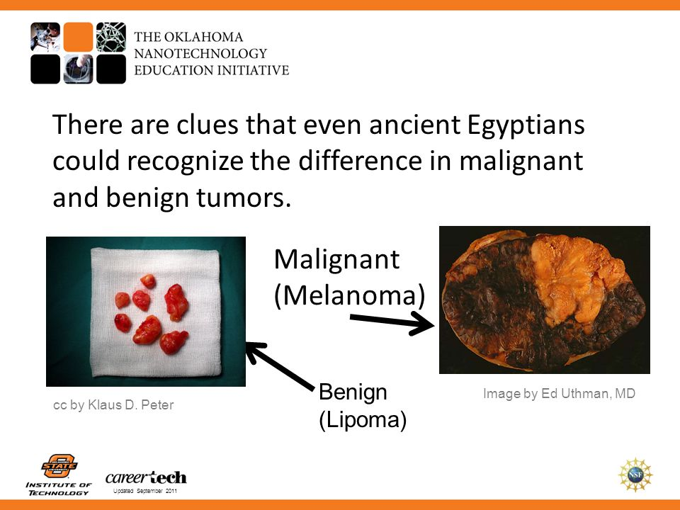 Updated September 2011 There are clues that even ancient Egyptians could recognize the difference in malignant and benign tumors. Malignant (Melanoma)