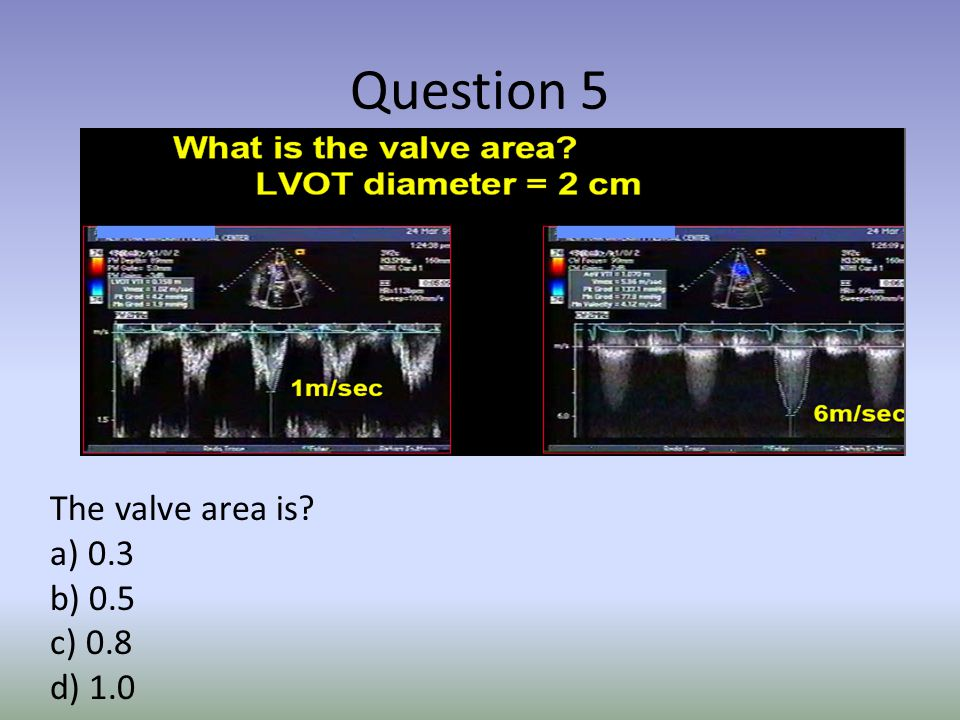 Question 1 Components for the continuity equation for AVA include all the following except.