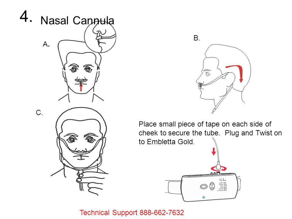 Nasal Cannula A. A. B. C. Place small piece of tape on each side of cheek to secure the tube. Plug and Twist on to Embletta Gold. 4. Technical Support