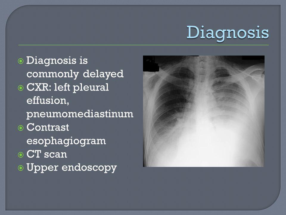 Diagnosis is commonly delayed CXR: left pleural effusion, pneumomediastinum Contrast esophagiogram CT scan Upper endoscopy