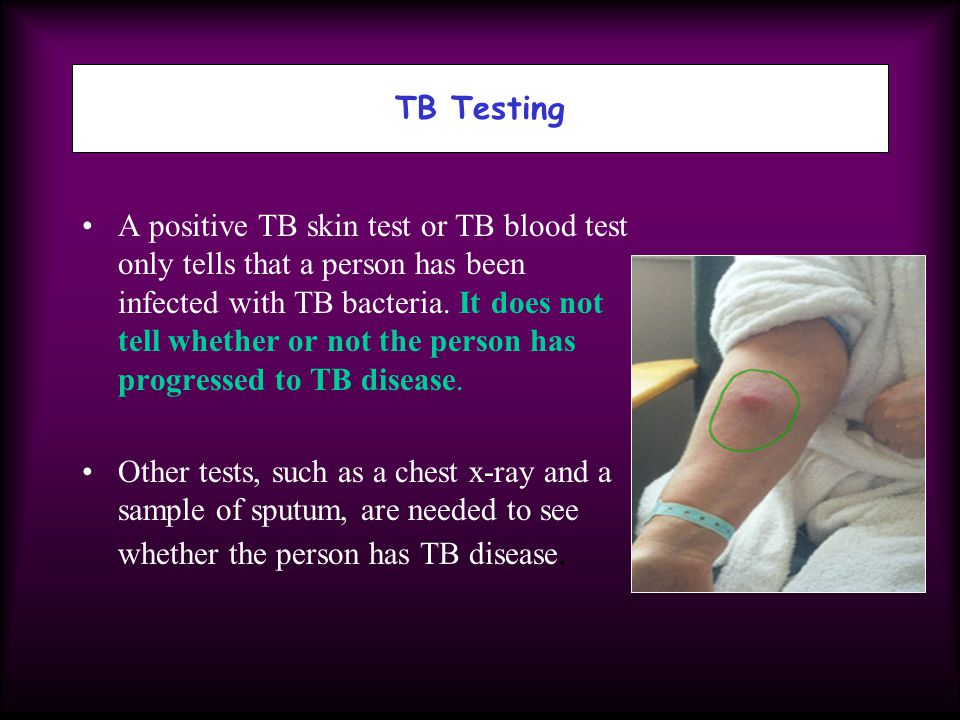 A positive TB skin test or TB blood test only tells that a person has been infected with TB bacteria. It does not tell whether or not the person has p