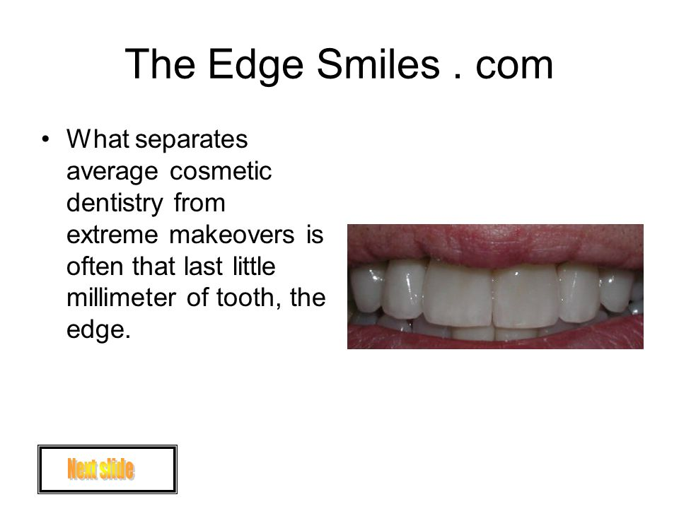 The Edge Smiles. com What separates average cosmetic dentistry from extreme makeovers is often that last little millimeter of tooth, the edge.