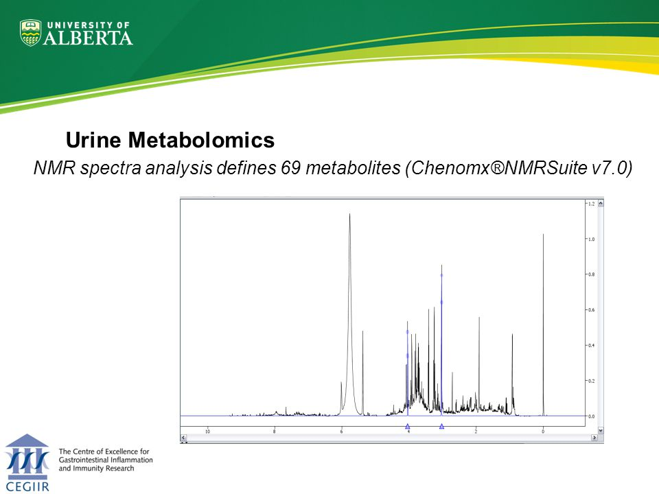 Urine Metabolomics N= 69 metabolites in order of contribution to separation of group A from group B Concentration Partial least square discriminate analysis definesvery important metabolites and their concentrations most contributing metabolites least contributing metabolites