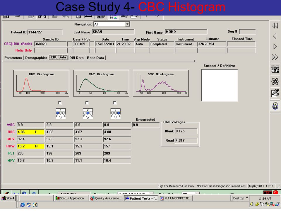 Case Study 4- CBC Histogram