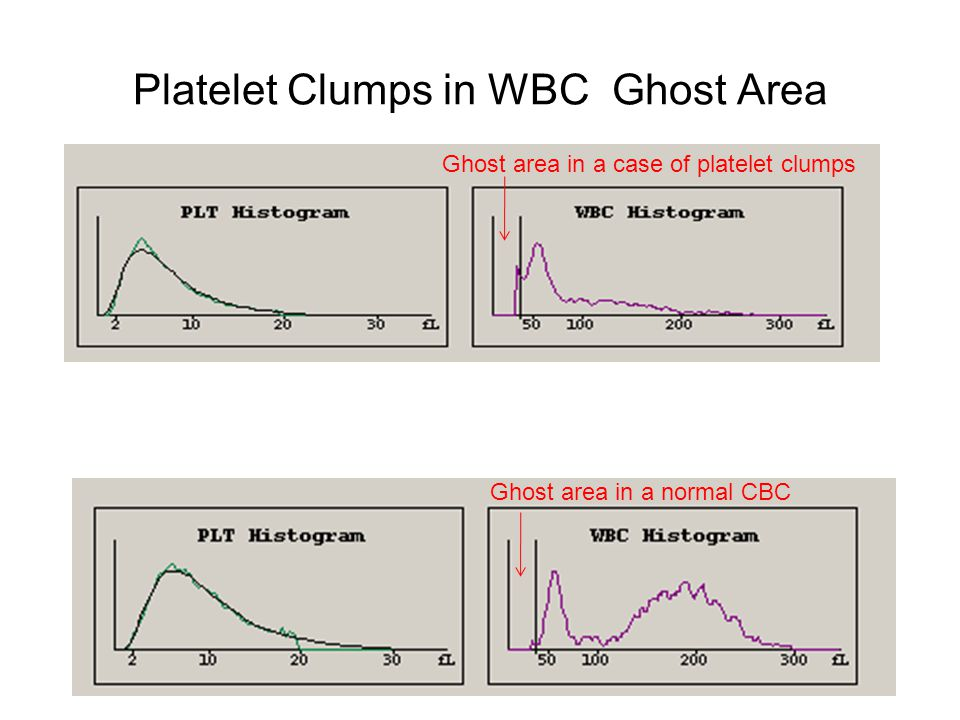 Platelet Clumps in WBC Ghost Area Ghost area in a case of platelet clumps Ghost area in a normal CBC