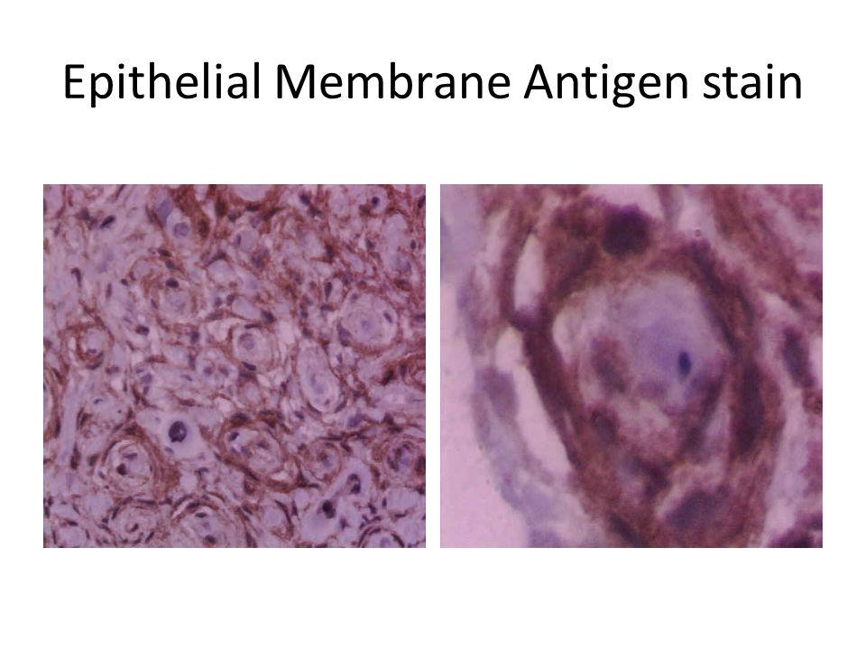 Epithelial Membrane Antigen stain