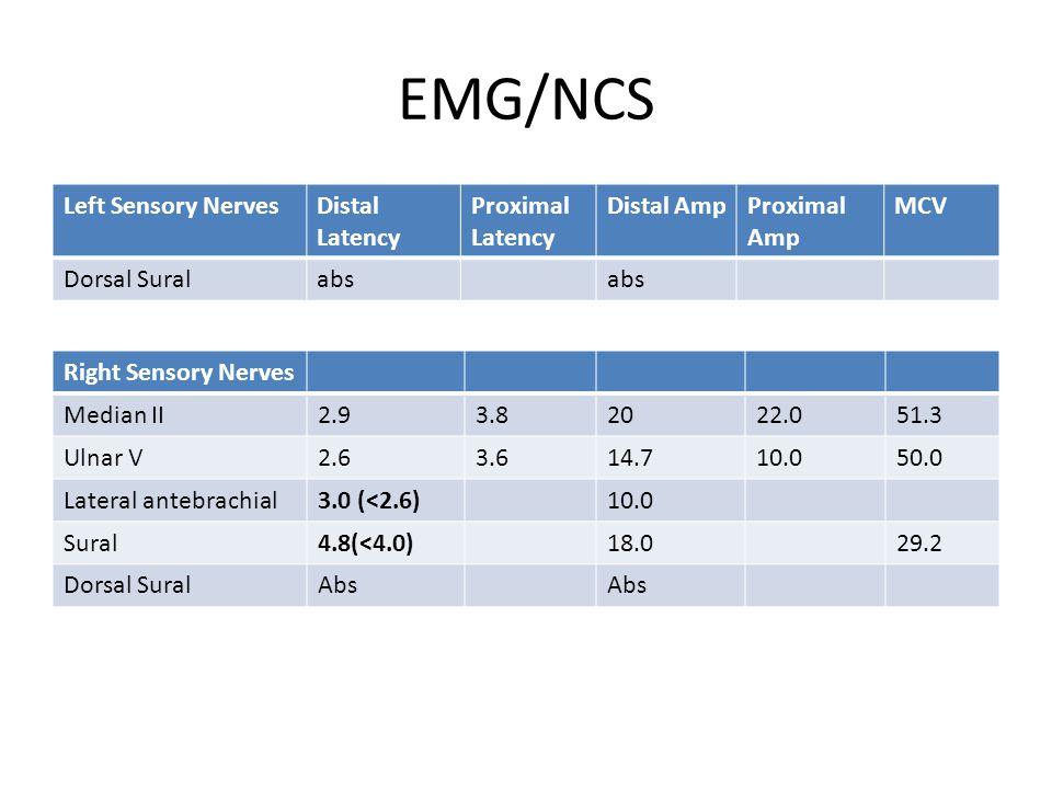 EMG/NCS Left Sensory NervesDistal Latency Proximal Latency Distal AmpProximal Amp MCV Dorsal Suralabs Right Sensory Nerves Median II2.93.82022.051.3 Ulnar V2.63.614.710.050.0 Lateral antebrachial3.0 (<2.6)10.0 Sural4.8(<4.0)18.029.2 Dorsal SuralAbs