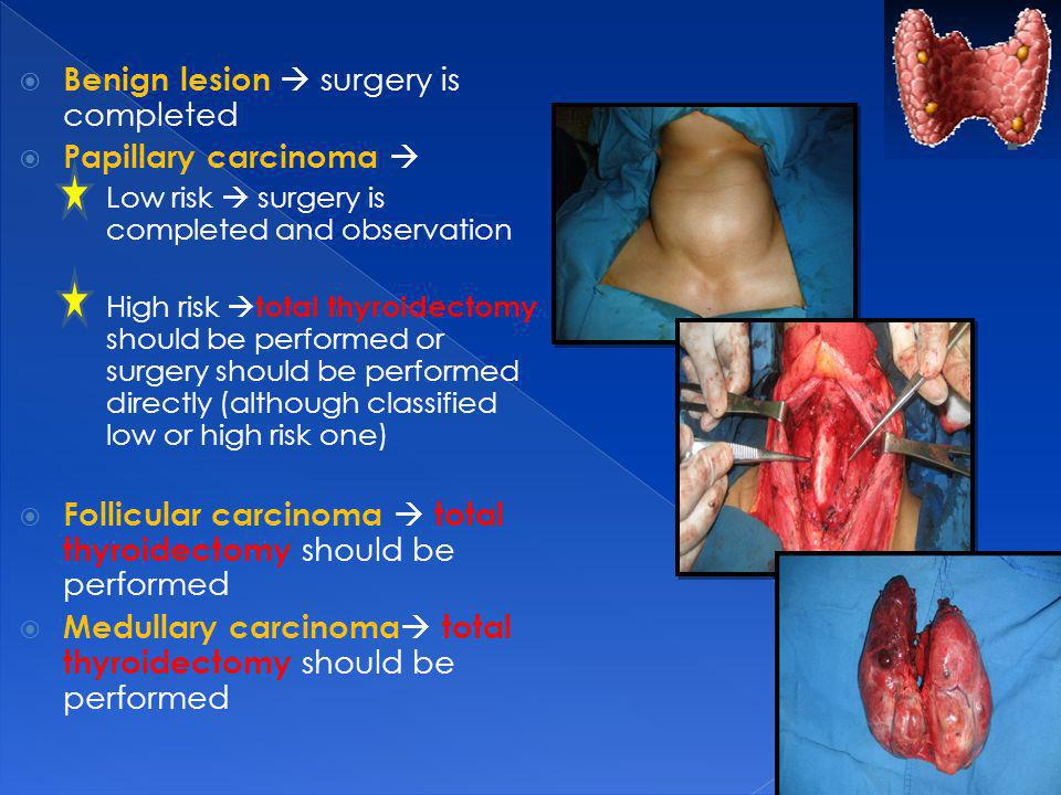 Benign lesion surgery is completed Papillary carcinoma Low risk surgery is completed and observation High risk total thyroidectomy should be performed or surgery should be performed directly (although classified low or high risk one) Follicular carcinoma total thyroidectomy should be performed Medullary carcinoma total thyroidectomy should be performed