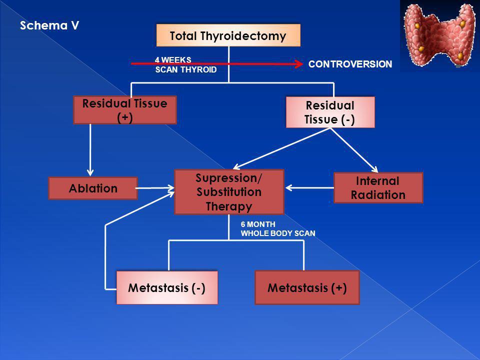 Total Thyroidectomy Residual Tissue (+) Ablation Supression/ Substitution Therapy Internal Radiation Metastasis (+) Metastasis (-) Residual Tissue (-)