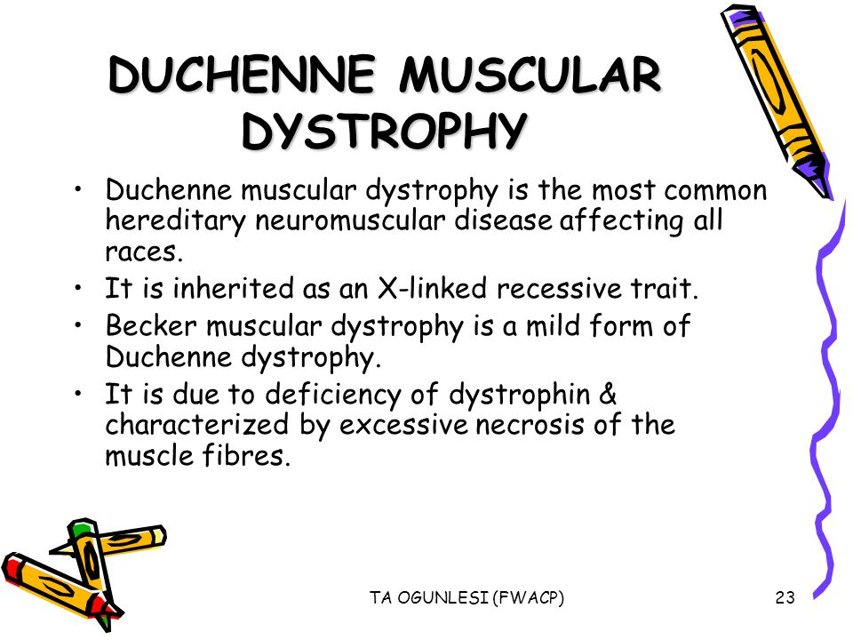 TA OGUNLESI (FWACP)23 DUCHENNE MUSCULAR DYSTROPHY Duchenne muscular dystrophy is the most common hereditary neuromuscular disease affecting all races.