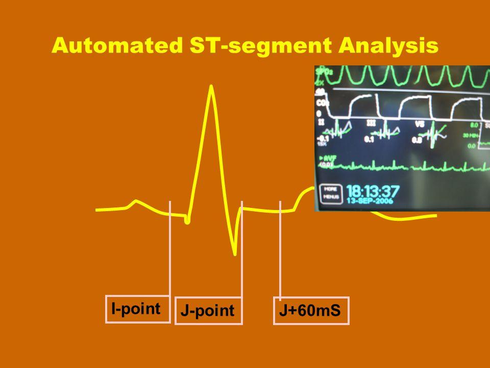 Automated ST-segment Analysis I-point J-pointJ+60mS