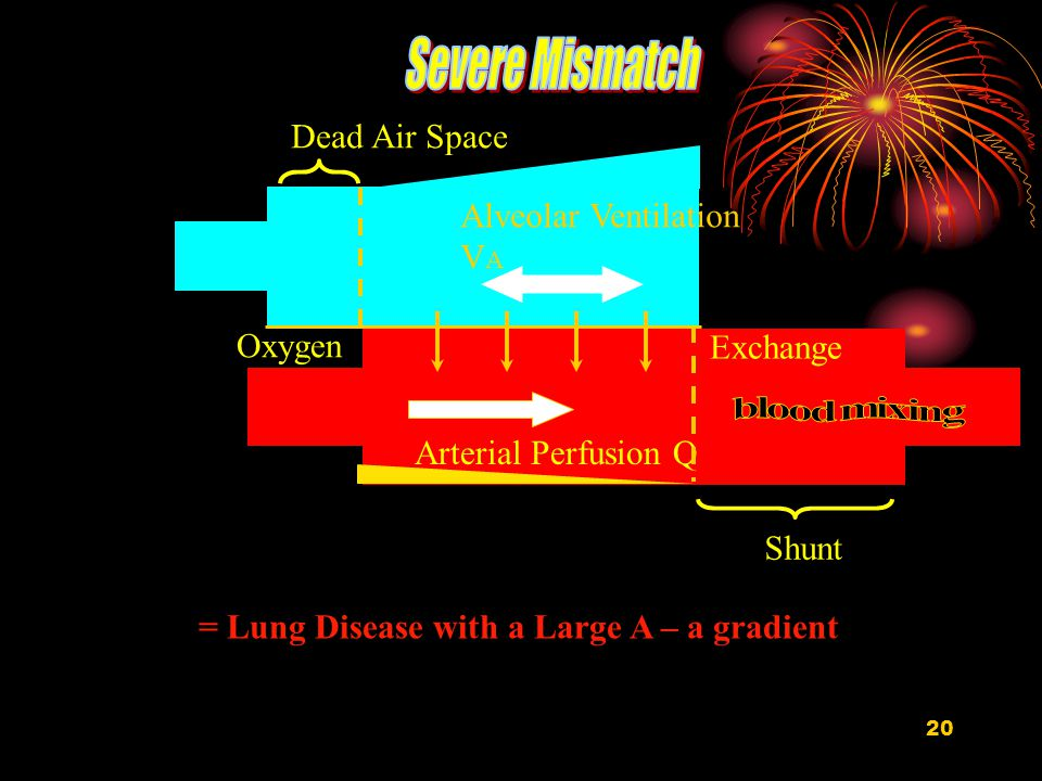 20 Alveolar Ventilation V A Arterial Perfusion Q Exchange Oxygen Dead Air Space Shunt = Lung Disease with a Large A – a gradient