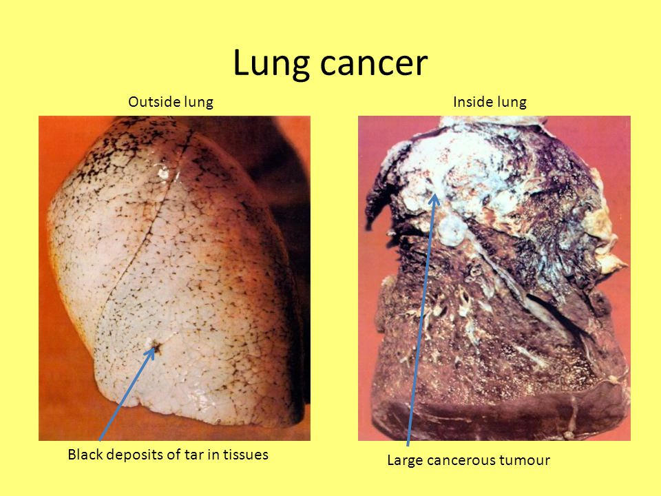 Lung cancer Black deposits of tar in tissues Large cancerous tumour Outside lungInside lung