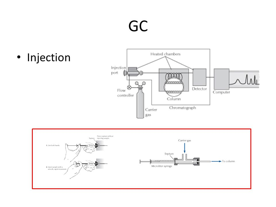 GC Injection
