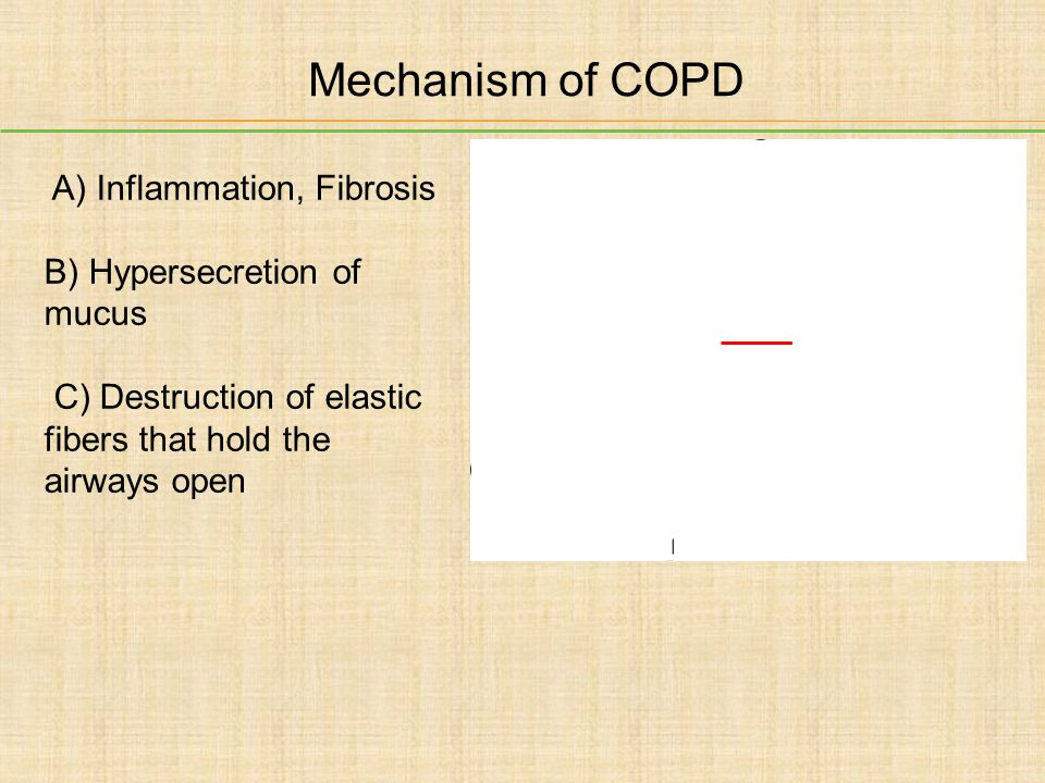 Mechanism of COPD A) Inflammation, Fibrosis B) Hypersecretion of mucus C) Destruction of elastic fibers that hold the airways open