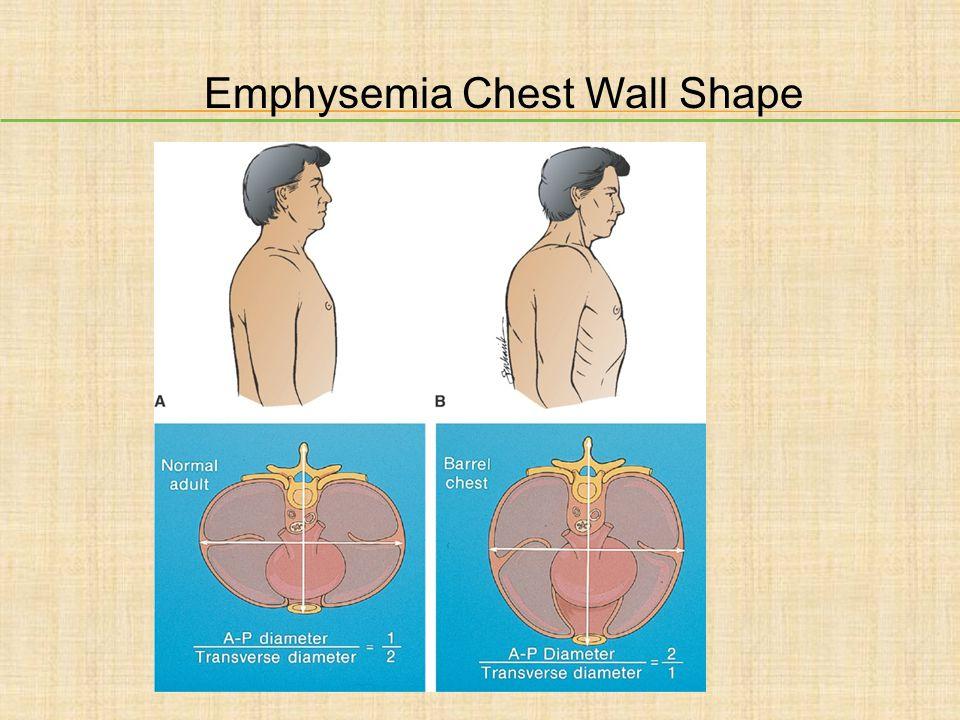 Emphysemia Chest Wall Shape