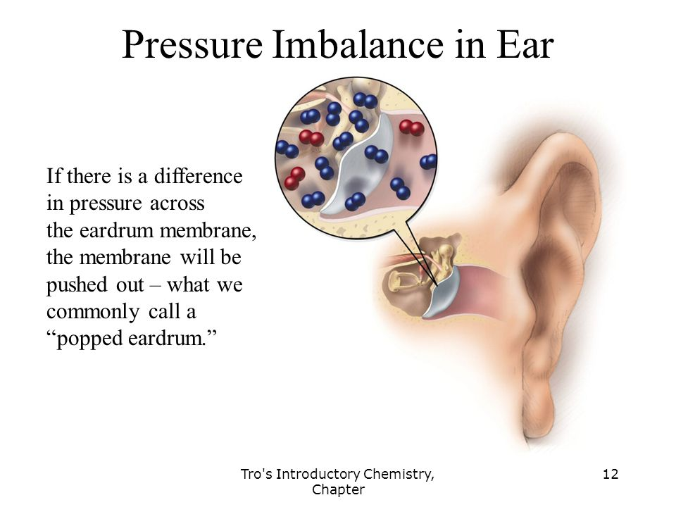 Tro s Introductory Chemistry, Chapter 12 Pressure Imbalance in Ear If there is a difference in pressure across the eardrum membrane, the membrane will be pushed out – what we commonly call a popped eardrum.