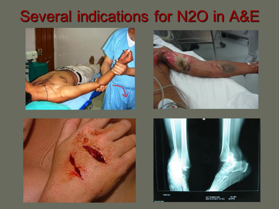 Several indications for N2O in A&E