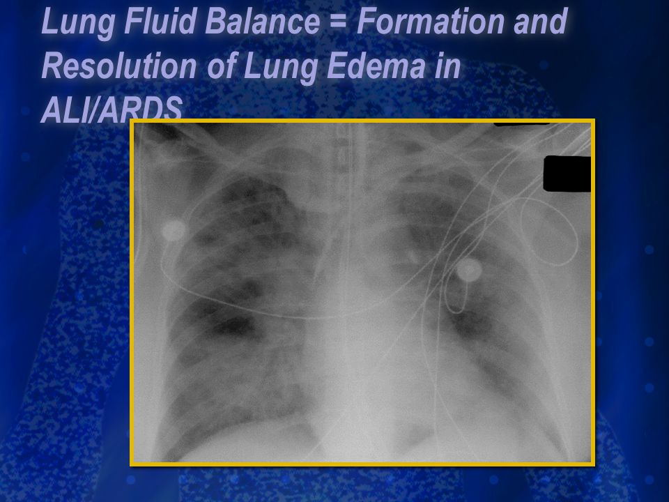 Lung Fluid Balance = Formation and Resolution of Lung Edema in ALI/ARDS