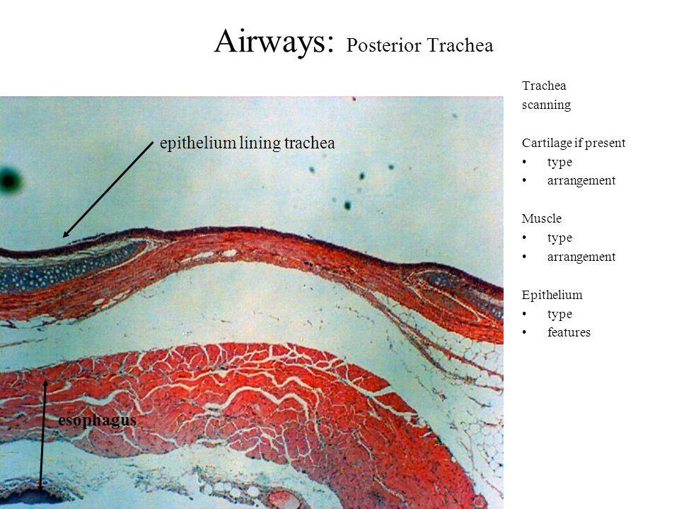 Airways: Trachea Trachea low Cartilage if present type arrangement Muscle type arrangement Epithelium type features