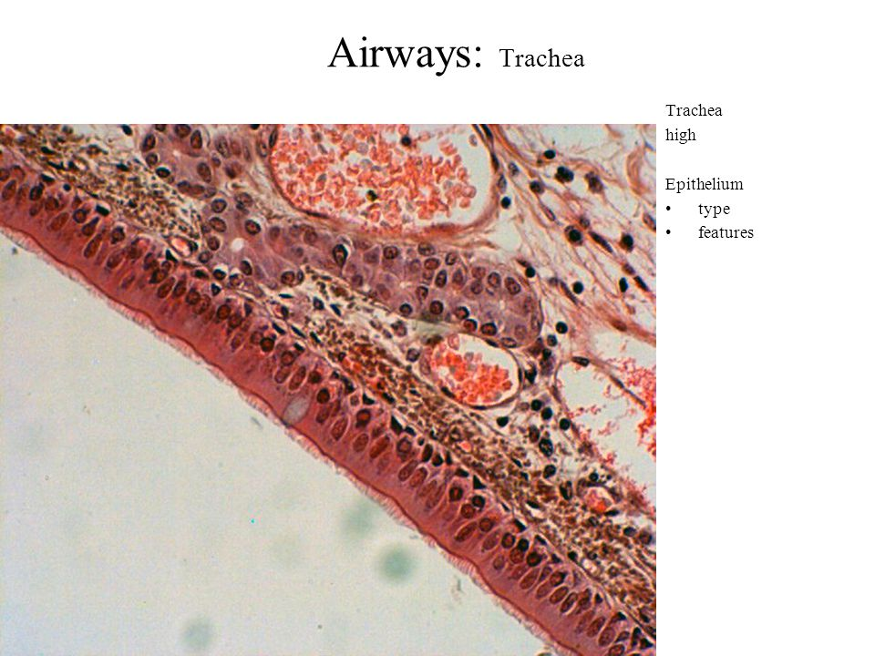 Airways: Trachea Trachea high Epithelium type features