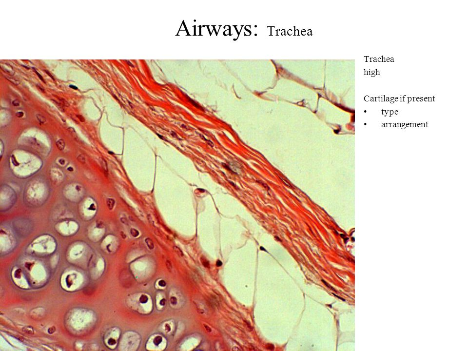 Airways: Trachea Trachea high Cartilage if present type arrangement