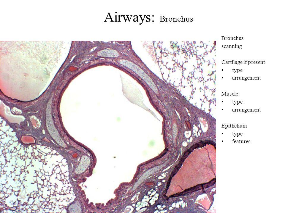 Airways: Bronchus Bronchus scanning Cartilage if present type arrangement Muscle type arrangement Epithelium type features