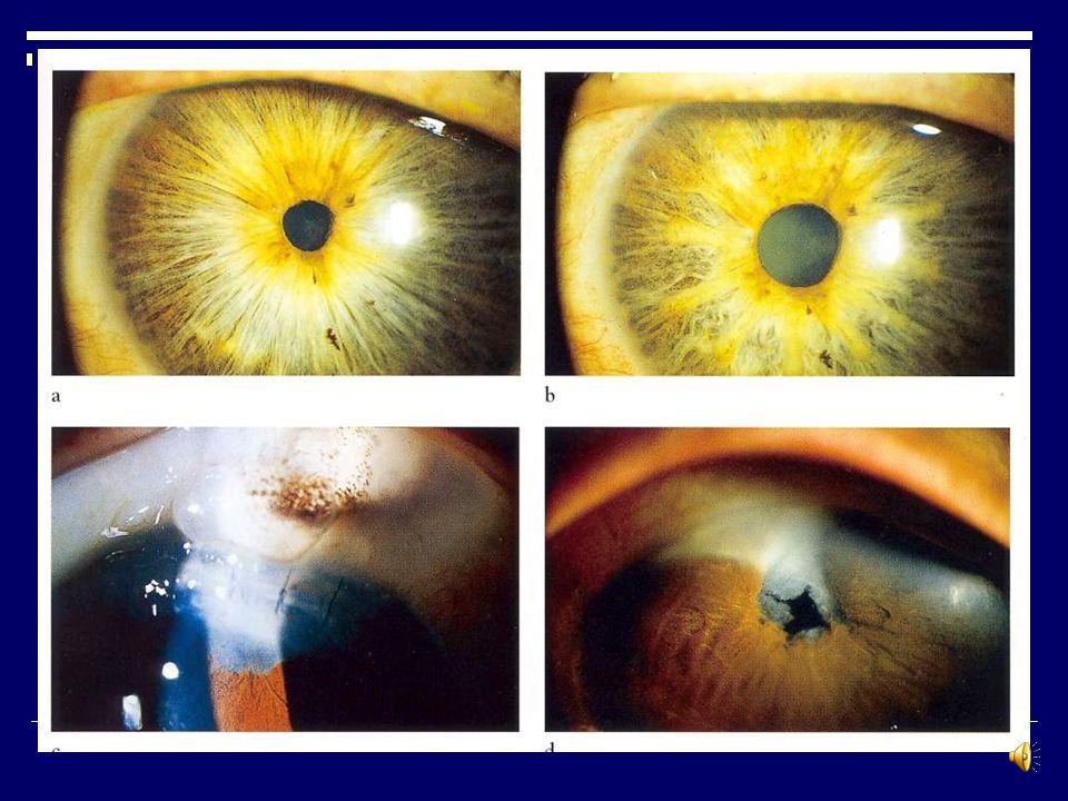 Nd:YAG laser peripheral iridotomy Spot size: fixed Duration: fixed ( nanoseconds) Energy: 1-12 j Lens: Abraham or Wise