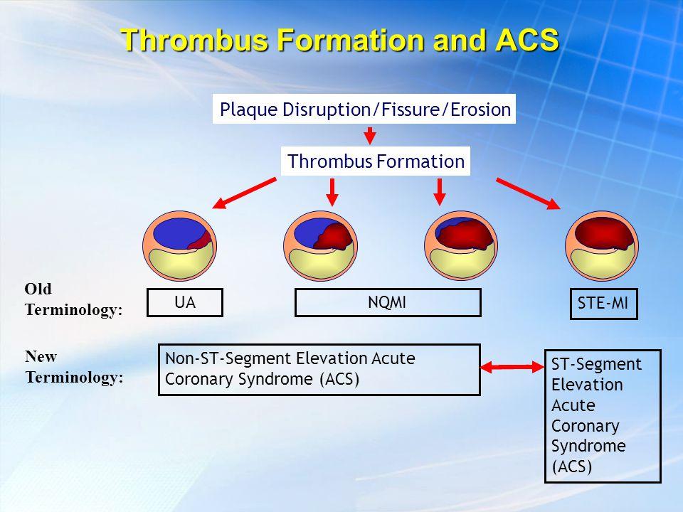 UANQMI STE-MI Plaque Disruption/Fissure/Erosion Thrombus Formation Non-ST-Segment Elevation Acute Coronary Syndrome (ACS) ST-Segment Elevation Acute Coronary Syndrome (ACS) Old Terminology: New Terminology: Thrombus Formation and ACS