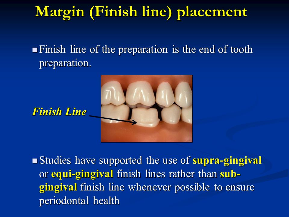 1-Feather- edge Finish line It is mainly indicated for cast metal crowns.